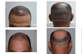 hair transplant costs in the philippines scalp micropigmentation smp asian hair restoration center