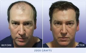 hair plugs for men hair clinic hair loss treatment in brisbane melbourne