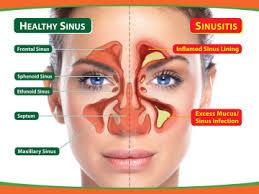can sinus infection cause dizziness light headed sinusitis my health maven