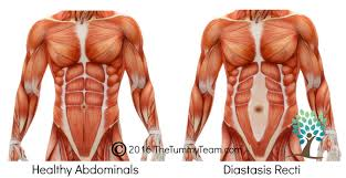 stomach muscles after c section 3 common symptoms you did not know were related to diastasis recti