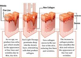 does at home red light therapy work tan deliver ltd kent sunbeds collagen i r