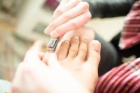 ingrown toenail treatment powerful home remedies footfiles