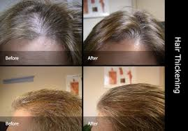 how to thicken hair thickener thin invisihair co uk