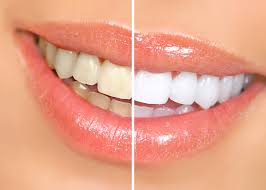 teeth bleaching natural teeth whitening awesome brighter white