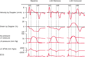 strain pattern ecg meaning fig 3 myocardial strain and velocity representative traces at