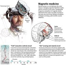 Cortical Blindness May Result From The Destruction Of Brain Altering Magnetic Pulses Could Zap Cocaine Addiction