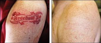 new at home tattoo removal method uses natural products to remove