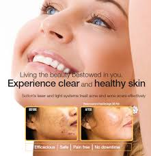 light therapy for acne scars laser acne treatment novus clinic cosmetic surgery in akron and