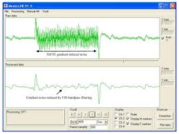 sensors free full text fetal electrocardiogram fecg gated