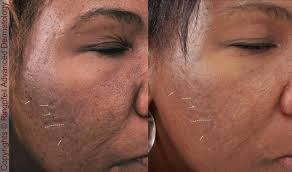 acne scars treatment philadelphia laser scar removal main line pa