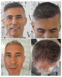 transplant hair second round draft 25 melhores ideias de fue hair transplant no pinterest melhor