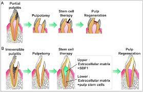 pulp regeneration by harnessing dental pulp stem cells intechopen