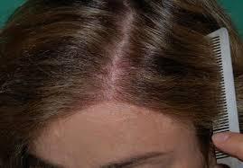 feminization hair hair loss chicago oak brook il hair transplant chicago