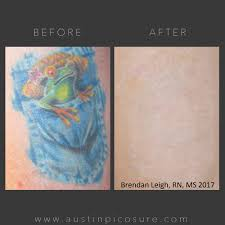 picosure tattoo removal treatment austin med spa