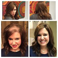 toppers for women with thinning or loss get