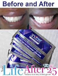 crest supreme whitening strips new year new you new smile with crest whitestrips check out my
