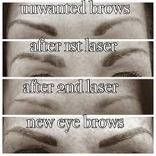 eye brow tattoo removal kidderminster