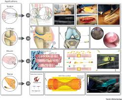 Tibiofibular Ligament Injury Human Based Biological And Biomimetic Autologous Therapies For