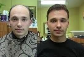hair weaves for balding men men weaves to get rid of baldness lose fat