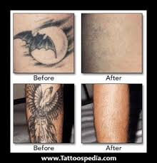 non laser tattoo removal before and after the dangers and risks