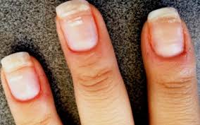 8 weird things that can happen to your fingernails u2014and what they