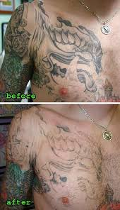 60 best laserless tattoo removal effective natural tattoo