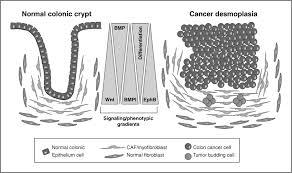 cancer associated fibroblasts drive the progression of metastasis