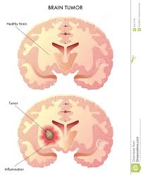 brain tumor royalty free stock images image 26275759