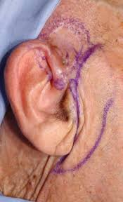 cancer of the ear cartilage pinna fillet flap after advanced external ear tumor resection