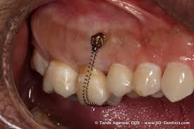 building your implant practice lateral grafting and orthodontic
