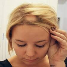 hairstyles for thin hair and bald spots for women how to fix bald spots health care pinterest bald spot hair