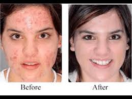 neutrogena light therapy acne mask before and after 6 benefits of 3d led mask anti aging secrets revealed youtube