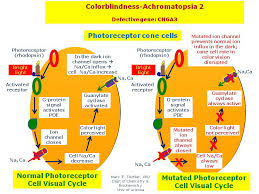 Cause Of Colour Blindness Colorblindness Achromatopsia 2 Hereditary Ocular Diseases