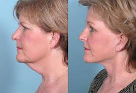 hairstyles that cover face lift scars facelift in west bloomfield mini facelift in birmingham