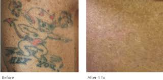 tattoo removal utah cost tattoo removal before after photos tattoo removal patient results