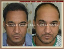 best hairtransplant in the world best hair transplant method in the world cosmoderma hair clinic