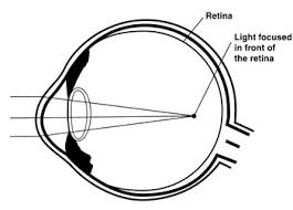 What Structure Of The Eye Focuses Light On The Retina Lasik Vision Correction Chapter Two