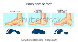 Skeletal Picture Of Foot Foot Ligaments Stock Images Royalty Free Images U0026 Vectors