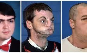 iafrica com man u0027s extreme face transplant