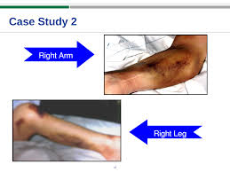 case studies in thrombosis and thrombocytopenia