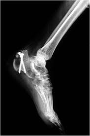 Os Calcaneus Calcaneal Fractures The Foot And Ankle Online Journal