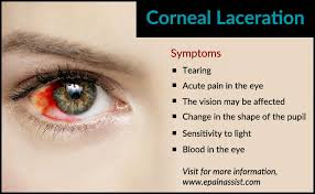 eye pain from light symptoms of corneal laceration eye pinterest eye pain and surgery