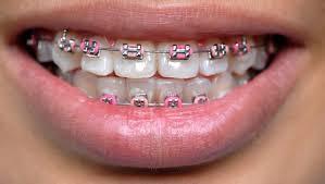 Braces Meme Girl - asian teens wearing fake braces as status symbol report huffpost