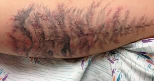 tattoo bacterial infection treatment infected tattoo outbreak traced to ink cbs news
