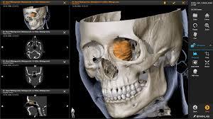 Skull Viewer Elements Dicom Viewer Web Based Brainlab