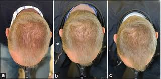 low level light therapy hair use of low level laser therapy as monotherapy or concomitant therapy