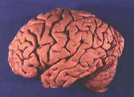 Gross Brain Anatomy Gross Brain Atlas Lateral View Of Brain