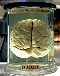 Part Of The Brain Stem That Is Involved In Arousal Brain Wikipedia