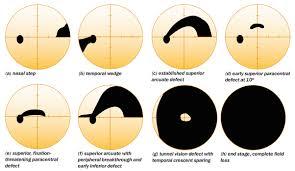 Blind Spot In Left Eye Community Eye Health Journal Visual Field Testing For Glaucoma