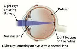 light streaks after cataract surgery catsur1 jpg